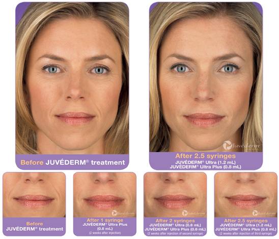 Cosmetic Injectables | Rolle Oral Facial Surgery